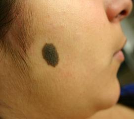 big_large_birthmark_mole_removal.jpg