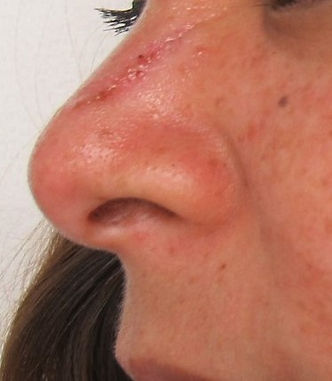 mole removal nose san antonio after.jpg
