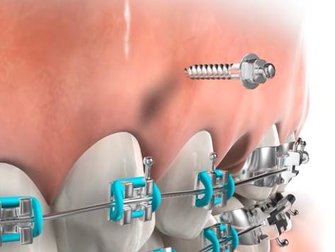 ทำไมต้องใช้หมุดจัดฟัน (miniscrew)