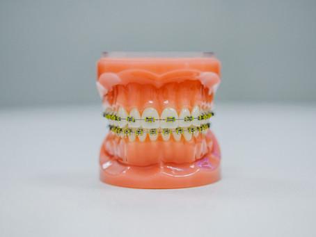 คำแนะนำและข้อปฏิบัติ หลังการติดเครื่องมือจัดฟัน