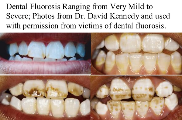 mild-to-severe-dental-fluorosis.png