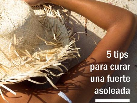 5 Tips para curar una quemadura de sol