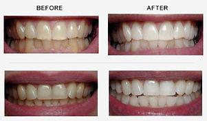 Cosmetics Dentistry