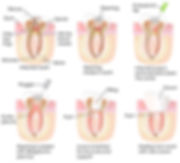 Root Canal Dentist Specialist