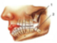 Wisdom Teeth Removal Treatment