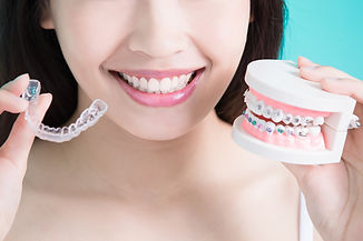 Invisalign Epping
