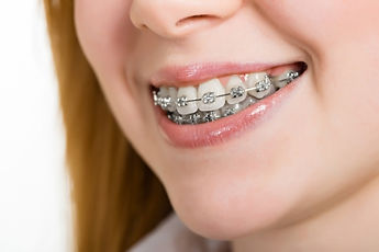 Orthodontics/Braces/Invisalign