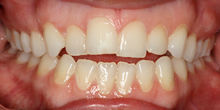 Orthodontist Warrnambool