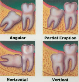 Wisdom Teeth Removal Epping
