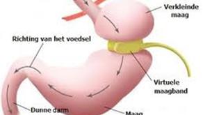 Virtuele maagband: minder gezonder eten, meer bewegen, meer eigenwaarde, dus fantastisch voelen!