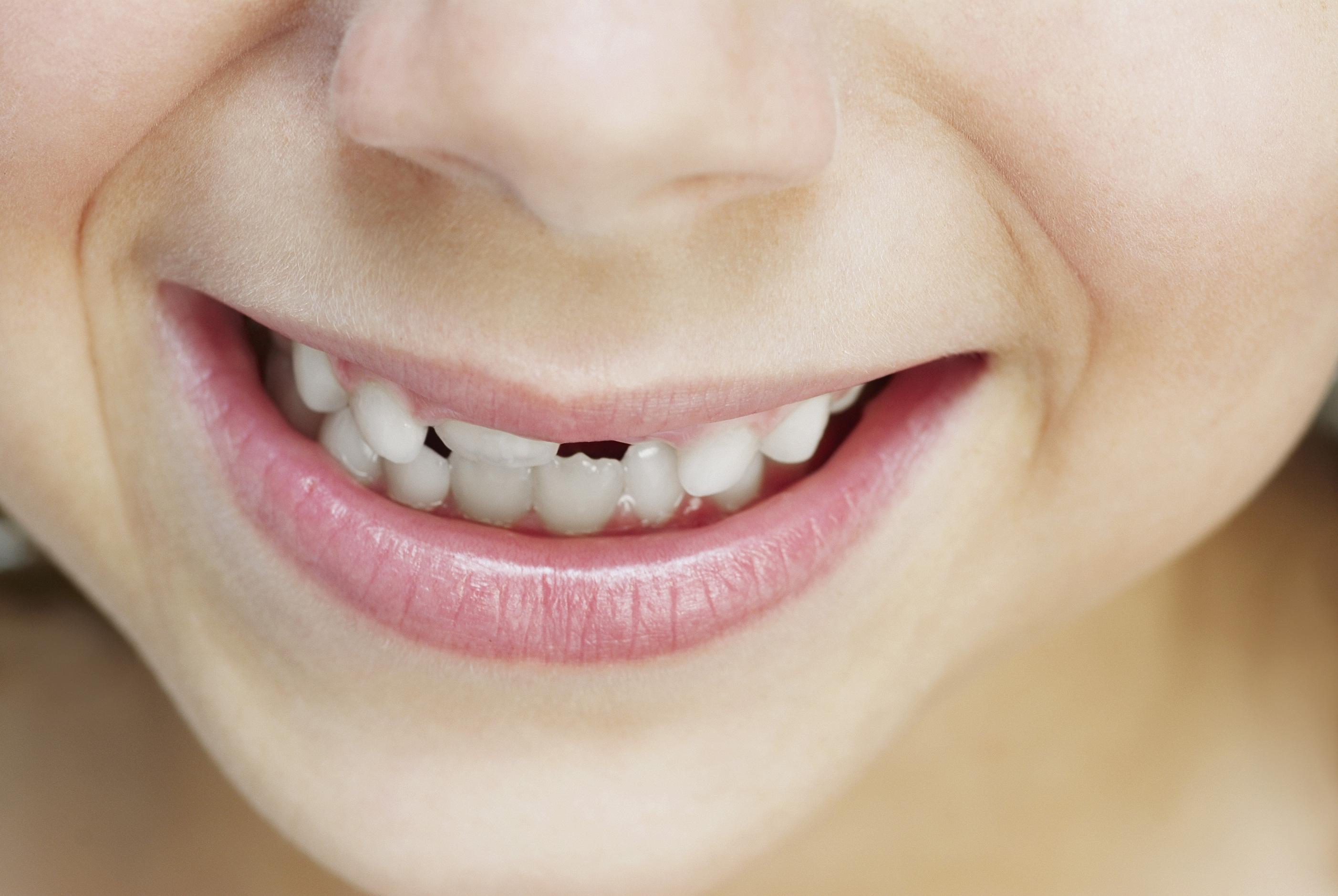 Zahnstellung bei Kindern