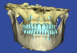 abb-2-dvt-scan-ohne-zahnfleisch-0-embed_image