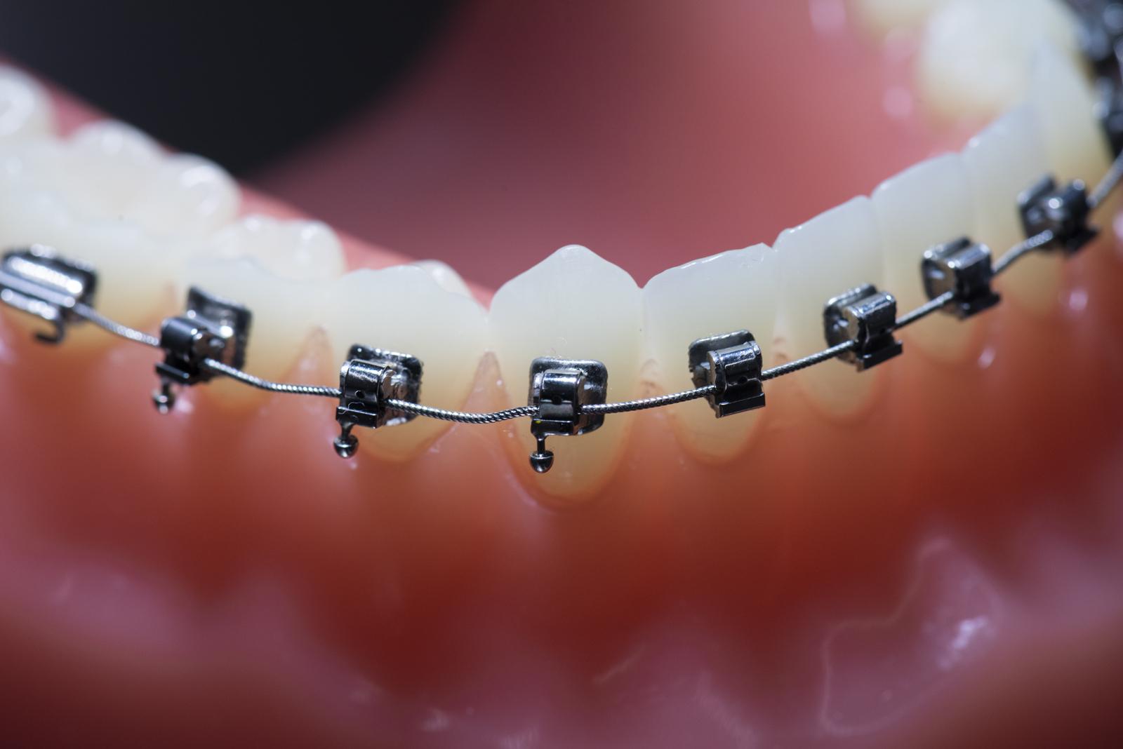 Zahnstellung korrigieren