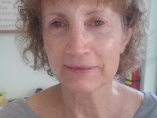 Acupuncture Face Lifts