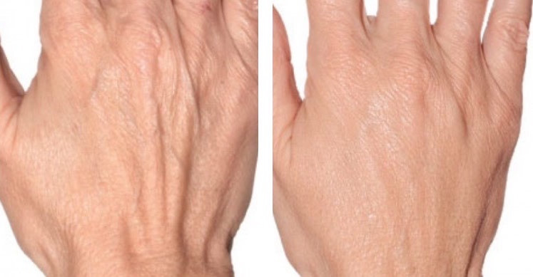 Profhilo Treatment To Back of  Hands