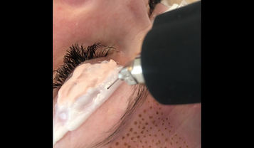 Plasma Pen Eye Lift