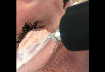 Plasma Pen Eye Lift