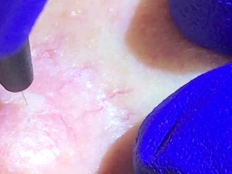 Advanced Cosmetic Procedure