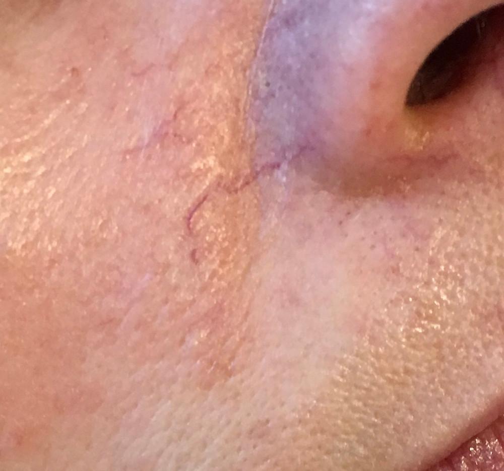 Red Veins around nose