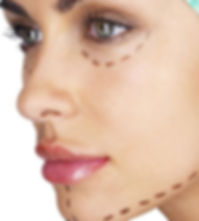 facial-implants.jpg