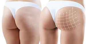 Female buttocks with arrows grid before