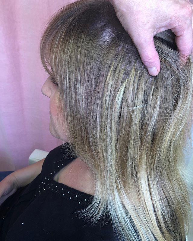 Zhuštění řídkých vlasů