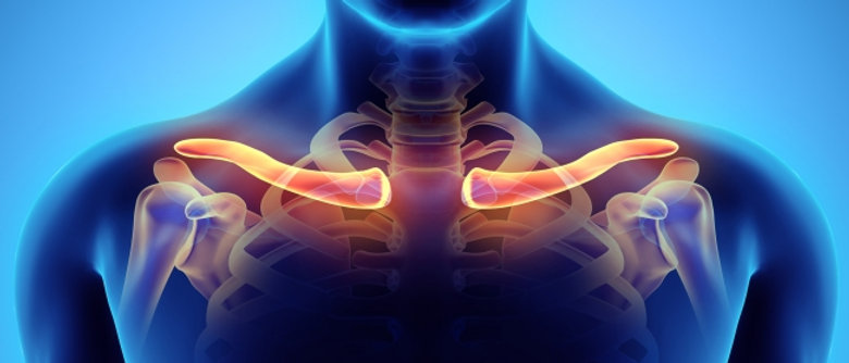 Relieving Thoracic Outlet Syndrome