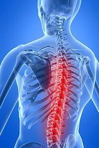 Spine-300X450.jpg