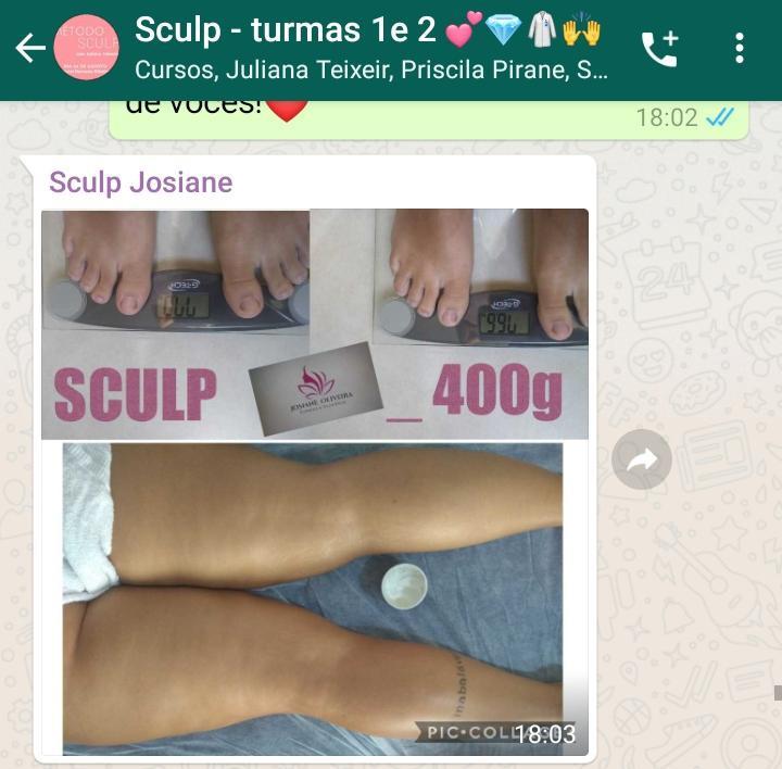 Método Sculp