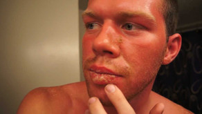Curing Exfoliative Cheilitis - Sunburn - 03/23/2013 - 62