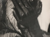 JACQUES LOWE  Girl Blinded by Malnutrition  1973  gelatin silver print  16 x 20 inches