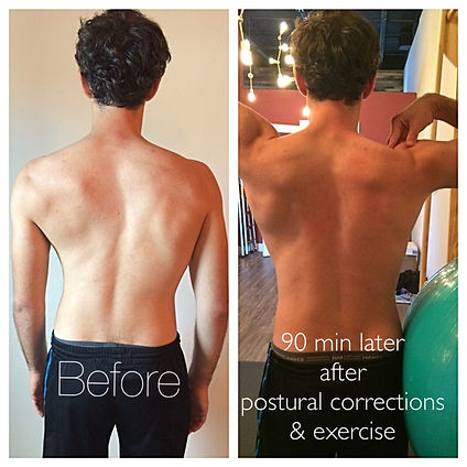 SchrothTherapy_BeforeAfter_KiokoTherapy-