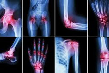 Arthritis Marker