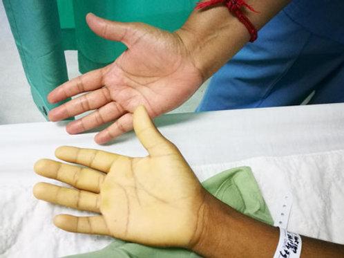 Basic Anaemia