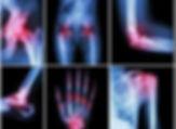 Artritis-Markers.jpg