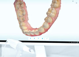Implant dental specialist Singapore