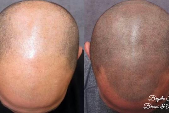 Hair Folllicle Pigmentation