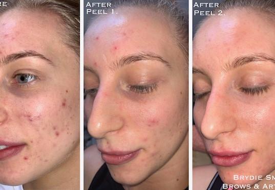Skin Transformation Peel