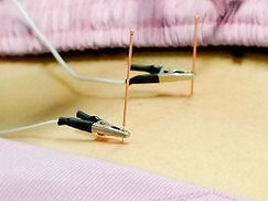 acupuncture princeton, Princeton AcuHealth, Zohra Awan, princeton acupuncture