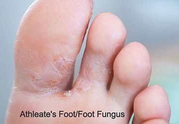 footfungus_edited.jpg
