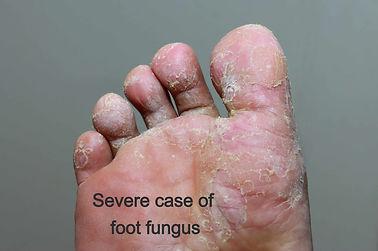 footfungus2_edited.jpg