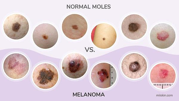 how-melanoma-looks-like.jpg