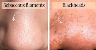 Are your blackheads really Sebaceous Filiments?