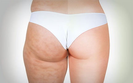cellulite-treatment.jpg