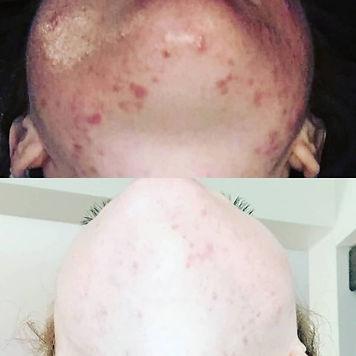 acne results 2.jpg