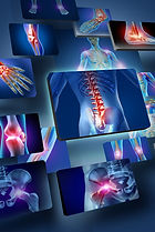 Musculosketal X Ray and Conditions