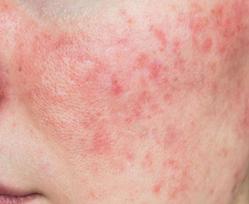 acne_rosacea-.png