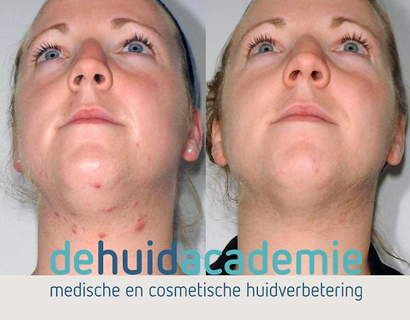 Ilona Janssen product gebruik ZO Medical en ZO Skin Health producten en behandeling in De HuidAcademie Veghel.