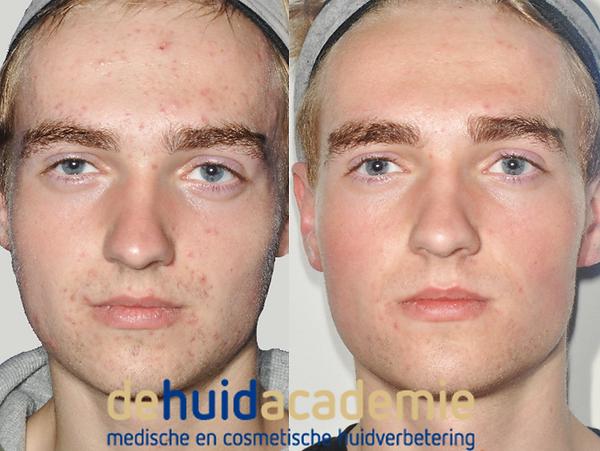 Mark Hofmans product gebruik ZO Medical en ZO Skin Health producten.