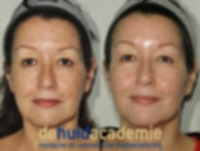 Babs IJkelenstam product gebruik ZO Medical en ZO Skin Health